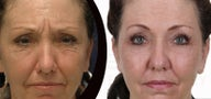 Face fat grafting with body jet (water-assisted liposuction)