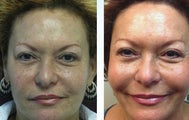 64 yo African American TCA peel and Sculptra