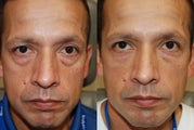 Lower eyelid and cheek rejuvenation with Silikon-1000