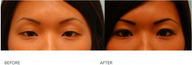 "Asian Blepharoplasty (""Double Eyelid"" Procedure)"