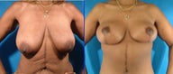 Breast and Body Lift