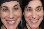 Botox Cosmetic to treat Crow's Feet