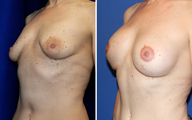 DIEP Instant Implant Breast Reconstruction