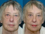 73 year old woman treated with browlift, upper and lower blepharoplasty and fat grafting.
