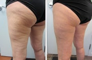 Cellulaze Laser Cellulite Reduction