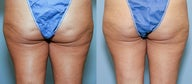 42  year old female with cellulite