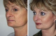 Cheek and Chin Implants, Neck Lift