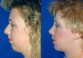 Chin augmentation and Rhinoplasty