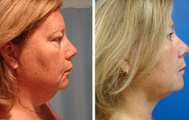 48 year old female who underwent liposuction of neck