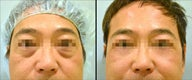 Lower Eyelid(Blepharoplasty) Surgery