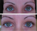 Eyelid Surgery & Fat Grafting