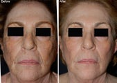 Fraxel Laser Resurfacing with Obagi NuDerm