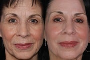 Derma K and Fraxel Repair Laser Treatment of Wrinkles