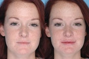 Juvederm Lip Augmentation