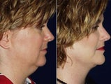 Liposuction of double chin and facelift