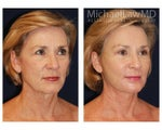 Lower Face and Neck Lift