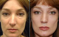 Liquid Face Lift with Silikon-1000