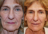 Non-surgical face lift with Silikon-1000