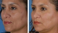 Filler injections to the cheek folds