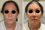 Facial Rejuvenation with Filler