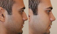 Rhinoplasty. 11 days after surgery.