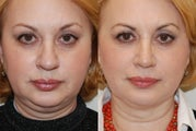 Rhinoplasty and Neck Liposuction