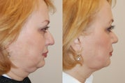 Rhinoplasty and Neck Liposuction, profile view