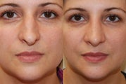 Rhinoplasty, 3 weeks post-op. Front view