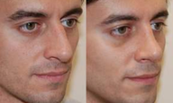 Rhinoplasty 6 weeks post-op.