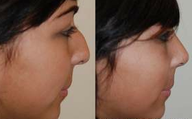 Rhinoplasty Surgery. 1 month post-op. Profile view.