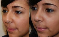 Rhinoplasty Surgery. 1 month post-op. 3/4 view.