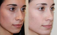 Rhinoplasty and Chin Implant Surgery