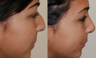 Rhinoplasty Surgery. 3 months post-op. Profile view.