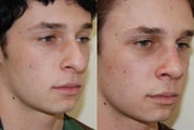 Rhinoplasty Surgery. 1 month post-op.