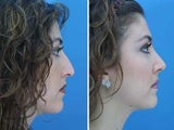 Rhinoplasty side profile of bridge and tip of nose