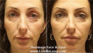 Thermage skin tightening for face and eyes