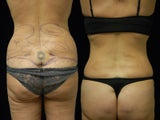 Smartlipo Triplex liposuction of the waist and flanks. Cellullaze of the buttocks and thighs