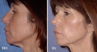 Threadlift for neck and jaw definition