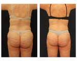 Liposuction