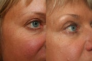 Non-Invasive Wrinkle Treatment