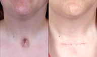 Woman in her 30's treated for a depressed, unsightly scar related to previous tracheotomy