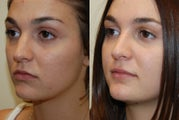 Rhinoplasty Surgery. 2 months post-op.