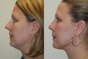 Rhinoplasty and Neck Liposuction Surgery. 1 month post-op.