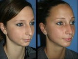 18 year old female treated with rhinoplasty, mentoplasty