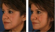 Dermal Fillers for Non-Surgical Cheek Enhancement