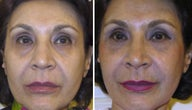 63 year old female treated with a non-surgical facelift