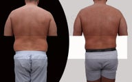 "Male liposuction with body-jet ( water liposuction) for ""love-handles"""