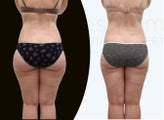 37 year old women body jet liposuction to remove fat and shaping of thighs