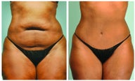 Abdominoplasty and Smartlipo of the abdomen and hips