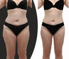 Body-jet (water liposuction) liposuction for lower body